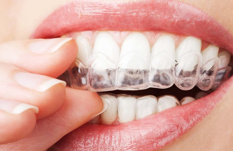 Stop grinding your teeth at night