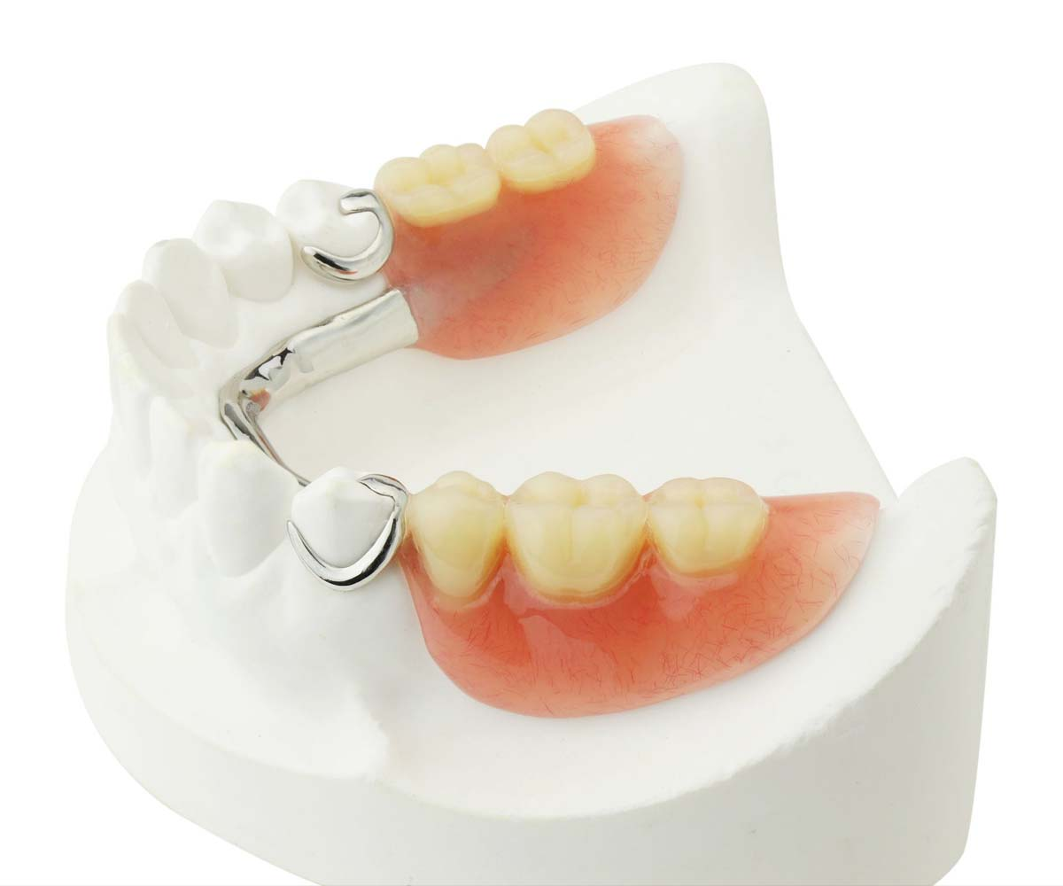 One tooth dentures or partial dentures available